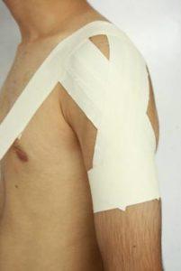 Zinc Oxide Tape Shoulder